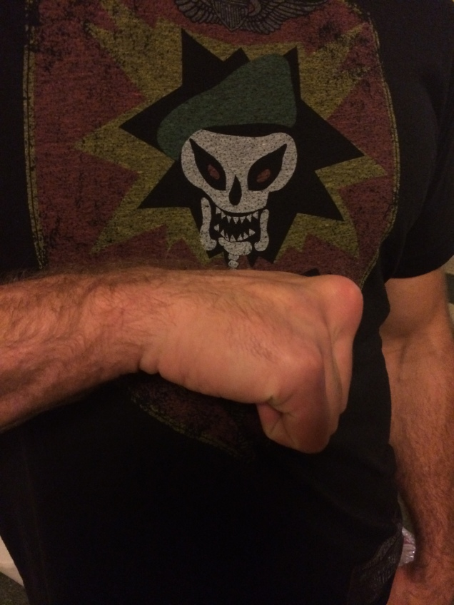 One for my paleopathology friends! Ryan Jensen has the best boxer's knuckles I've ever seen.